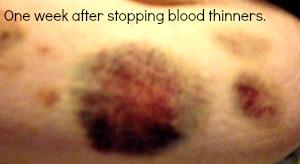 kayley-bruised-belly2